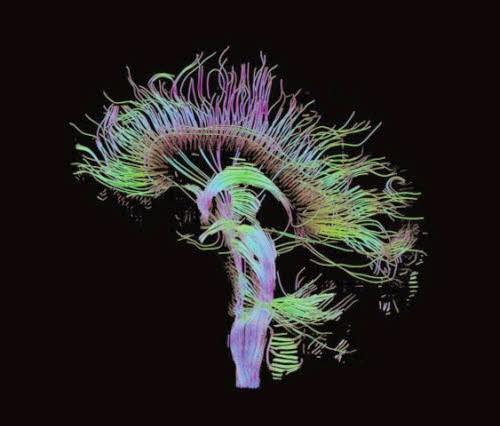 Nervenbahnen im Hirn